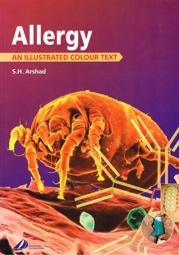 Allergy An Illustrated Colour Tekst ISBN 0443062714